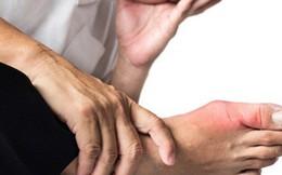 Nguyên nhân bất ngờ khiến nhiều người dễ bị bệnh gút