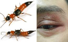 Nọc độc gấp 15 lần rắn hổ, kiến ba khoang cắn nguy hiểm thế nào?