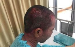 Nhập viện cấp cứu sau khi dùng thuốc nhuộm tóc