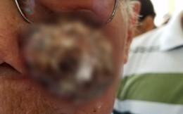 Phẫu thuật cắt bỏ khối u xùi loét má trái, tạo hình thành công cho cụ ông 91 tuổi