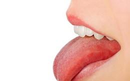 Dấu hiệu sớm của ung thư lưỡi