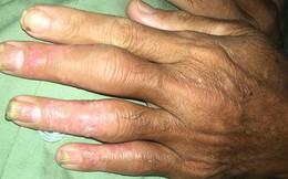 Nghe lời chữa bệnh vảy nên theo thầy lang, bệnh nhân lãnh hậu quả nặng nề là các khớp chân - tay - gối sưng to đến biến dạng