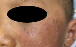 Hóa trang Halloween, bé 4 tuổi bỏng rộp da mặt và khuyến cáo của bác sĩ chuyên khoa