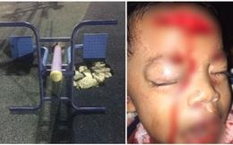 Bé trai bị thương nghiêm trọng do món đồ vật quen thuộc khi đi chơi công viên