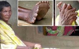 Có đến 12 ngón tay, 19 ngón chân do dị tật bẩm sinh, người phụ nữ phải trốn chui trốn nhủi trong nhà vì bị đồn là phù thủy