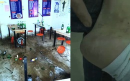 Chỉ thanh toán một phần hóa đơn bữa ăn, người đàn ông tấn công chủ quán rồi vội vã báo cảnh sát trước để ăn vạ