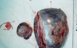 Đang điều trị xuất huyết tiêu hoá, người phụ nữ phát hiện khối u buồng trứng to gấp 10 lần bình thường