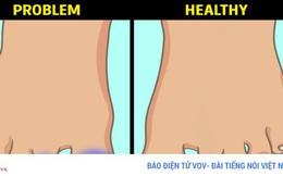 6 dấu hiệu bất thường ở chân cảnh báo bệnh nguy hiểm
