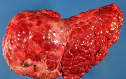 Bộ phận này càng to, báo hiệu lá gan, tuyến tụy đang dần suy kiệt