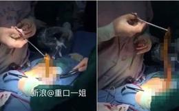Trung Quốc: Bạn đểu chơi khăm khiến lươn chui tọt vào hậu môn của cậu trai trẻ tuổi