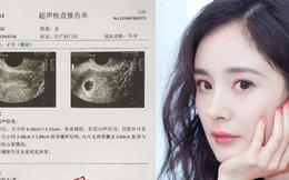 """Vừa mới bị """"tóm sống"""" cùng vào khách sạn, Dương Mịch đã bị nghi lộ tờ giấy khám mang thai với tình trẻ"""
