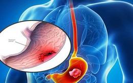 17 nghìn người mắc ung thư dạ dày: Dấu hiệu nào cảnh báo bệnh?