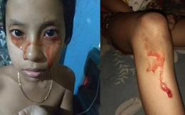 Mắc bệnh hiếm gặp khiến máu tiết ra liên tục 5 lần/ngày trên toàn bộ cơ thể, cuộc sống của cô bé 8 tuổi thay đổi hoàn toàn