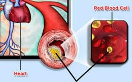 Mỡ máu cao có thể gây tổn thương nội tạng và mạch máu