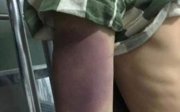 Nam thanh niên tử vong sau 2 ngày ở nhà tạm giữ, người đầy vết bầm tím