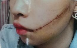 Trên đường đi làm nữ công nhân bị rạch mặt khâu 25 mũi
