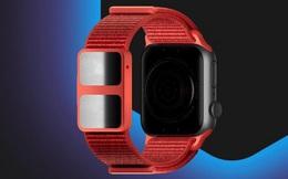 Tưởng Apple Watch đã thông minh nhưng với chiếc dây đeo này nó sẽ còn 'thông minh' hơn thế