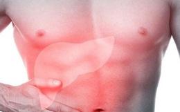 """Ngày Tết, bệnh lý gan tăng rất nhiều: PCT Hội Gan mật chỉ cách thải độc và """"cấp cứu"""" gan"""