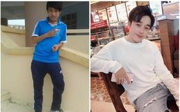 Chàng trai 8 tháng 4 lần phẫu thuật thẩm mỹ: Không hối hận kể cả khi không may gặp biến chứng
