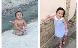 """Bé gái khuyết tật ở Mường Lát: Sau 2 năm """"thay da đổi thịt"""" đã tự đi trên đôi chân của mình"""