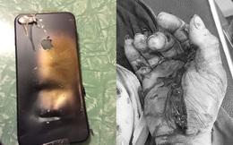 Thanh niên bị dập nát bàn tay vì điện thoại phát nổ