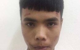 Bị cướp, cô gái trẻ đánh tên cướp trọng thương rồi gọi xe cấp cứu đưa đi viện
