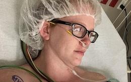 Người mẹ mắc cả 3 loại ung thư da vì nhầm lẫn vị trí ác tính của ung thư với mụn trứng cá