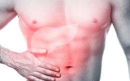 Làm sao để biết gan của bạn có khỏe mạnh không: Hãy tự kiểm tra theo gợi ý này