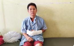 Thiếu tá công an bị con nghiện chém đứt gân tay