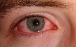 Đau mắt đỏ nhẹ có phải là một trong các triệu chứng để nhận biết người mắc Covid-19?