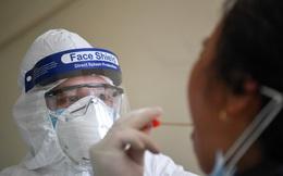 SARS-CoV-2 bằng cách nào làm 'nổ tung' tế bào phổi để phát tán và lây bệnh?