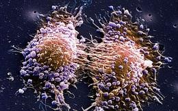 Ung thư không lây nhưng 1 số nguyên nhân gây ung thư có thể lây: Ai cũng cần biết để phòng