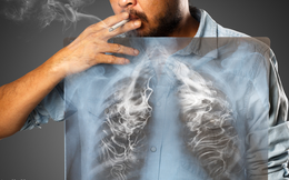 Mỗi năm TQ có 780.000 người mắc ung thư phổi: BS khuyên 3 việc không nên làm trước khi ngủ