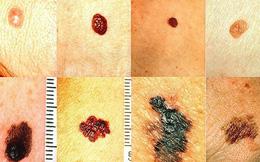 """Tia cực tím đang ở ngưỡng rất cao, có thể """"đốt cháy"""" da, gây ung thư: BS bày 5 cách bảo vệ"""