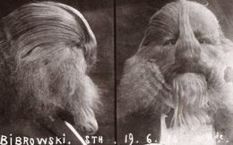 Câu chuyện cuộc đời đầy bí ẩn về người đàn ông có biệt danh 'Người có khuôn mặt sư tử'