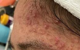 Thói quen cực xấu khiến da mặt càng ngày càng lồi lõm, mụn mọc chi chít