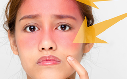 Bác sĩ BV Da liễu Trung ương: 3 sai lầm khi dùng kem chống nắng gây phản tác dụng