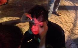 Quán bar cháy dữ dội lúc rạng sáng, 2 chiến sỹ chữa cháy bị thương