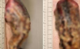 Phớt lờ miếng da nhỏ sần sùi trên lưng, 3 năm sau người đàn ông tá hỏa khi nó biến thành một cái 'sừng' 14cm bị ung thư