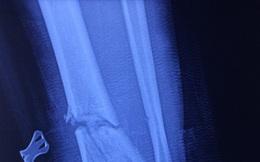 Người đàn ông 56 tuổi bị cưa cắt gần đứt chân