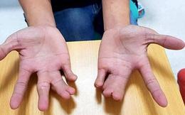 Dị tật bàn tay 'càng tôm hùm', bé 5 tuổi được bác sĩ tái tạo lành lặn