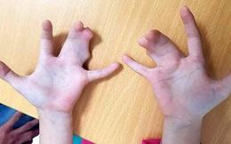 """Phẫu thuật thành công bàn tay """"càng tôm hùm"""" cho bé 5 tuổi"""