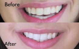 Trộn nước chanh với thứ này rồi chà lên răng, mảng bám hết sạch, răng vàng đến mấy cũng trắng sáng bất ngờ