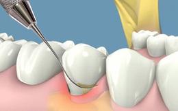 Răng khôn có nên nhổ?