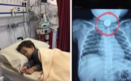Bố ngủ quên làm rơi đồng xu từ túi quần ra, con trai nhặt cho vào miệng phải đi 4 bệnh viện mới loại bỏ được dị vật