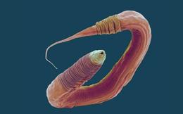 Chỉnh sửa gen giúp các nhà khoa học tăng 500% tuổi thọ của giun, tương đương 400 năm ở con người