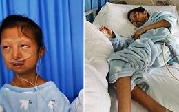 Chỉ ăn cơm trắng với ớt suốt 5 năm trời để có tiền chữa bệnh cho em trai, cô gái trẻ qua đời vì bị suy dinh dưỡng trầm trọng