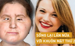 Hành trình của người phụ nữ trẻ nhất thế giới được cấy ghép khuôn mặt từ người hiến tặng và cuộc chiến với tử thần kéo dài 31 tiếng