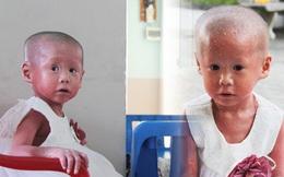 Cuộc sống hiện tại của em bé người đầy vẩy ngứa như da trăn, bị bố mẹ bỏ rơi trong bệnh viện