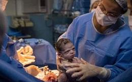 """Hình ảnh em bé vừa chào đời đã """"lườm xắt xéo"""" bác sĩ khiến cư dân mạng được một trận cười thả ga"""
